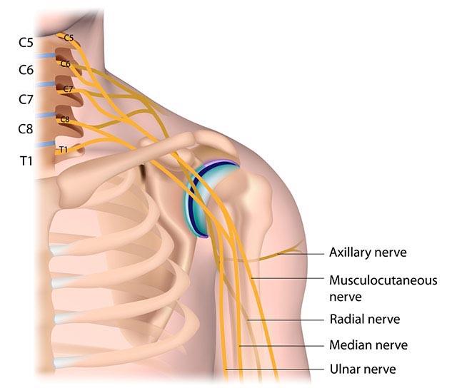 Brachial Plexus injuries Dr. Andrew Price