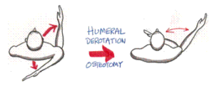 Humeral_Derotation