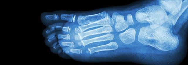 pediatric orthopedist dr price foot ankle